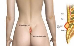 Причины появления опухоли в районе копчика, симптомы и лечение