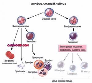 Разновидности острого лейкоза