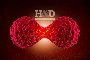 Основные стадии рака и их описание