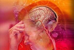 Как самостоятельно диагностировать шейную мигрень