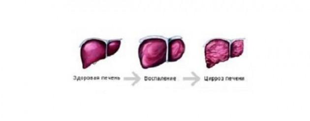 Стадии развития заболевания