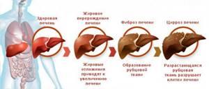 Основные признаки, стадии и диагностика