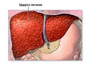 Как продлить жизнь при гепатите С