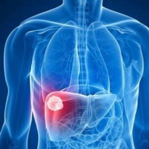 Цирроз печени: прогноз, сколько живут и как умирают пациенты с циррозом