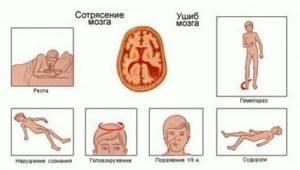 Доврачебная помощь при ударе мозга