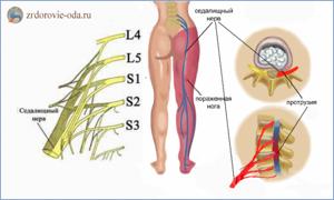 Причины неврита седалищного нерва