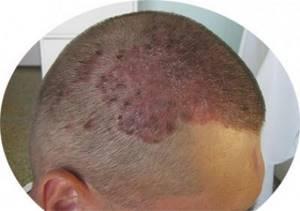 Недуги кожи головы