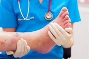Внешние признаки диабета на коже ног