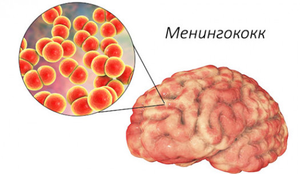Патогенез гнойного менингита