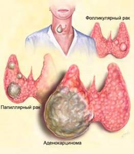 Краткие особенности папиллярной формы карциномы