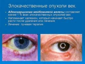 Опухоли век: причины заболевания, основные симптомы, лечение и профилактика