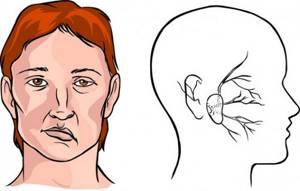 Медикаментозная профилактика инсульта головного мозга у женщин (мужчин) и можно ли предупредить (предотвратить) народными средствами