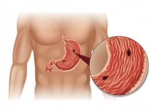 Перфорация желудка – причины, симптомы, хирургическое лечение