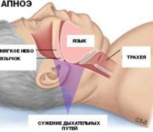Лечение апноэ во сне народными средствами