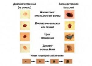 Меланома слизистых оболочек головы и шеи: рта и носа