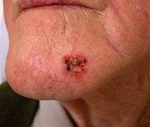 Как выглядит меланома кожи на фотографиях?