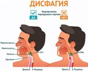 Причины, симптомы, методы обследования и лечения дисфагии