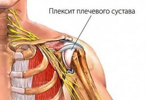 Симптомы плексита плечевого сустава