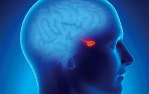 Симптомы опухолей гипофиза