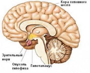Опухоль гипофиза – симптомы у женщин