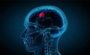 Синдром паркинсонизма