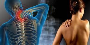 Дорсопатия пояснично-крестцового отдела позвоночника: что это и как лечится
