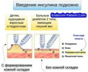 Правила введения инсулина, куда и как колоть